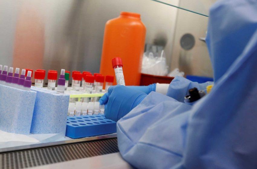 Reuters: Κοντά σε μοριακό τεστ για τον κοροναϊό Έλληνες ερευνητές!