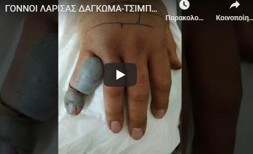 Τον δάγκωσε οχιά, παραλίγο να χάσει το δάκτυλο (vid)