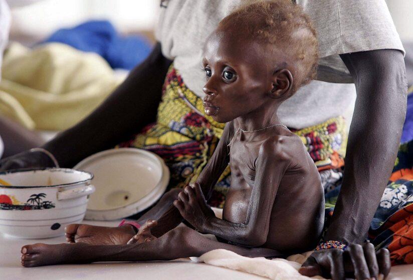 SOS από την UNICEF: Η κρίση του κοροναϊού θα αυξήσει ραγδαία τον υποσιτισμό