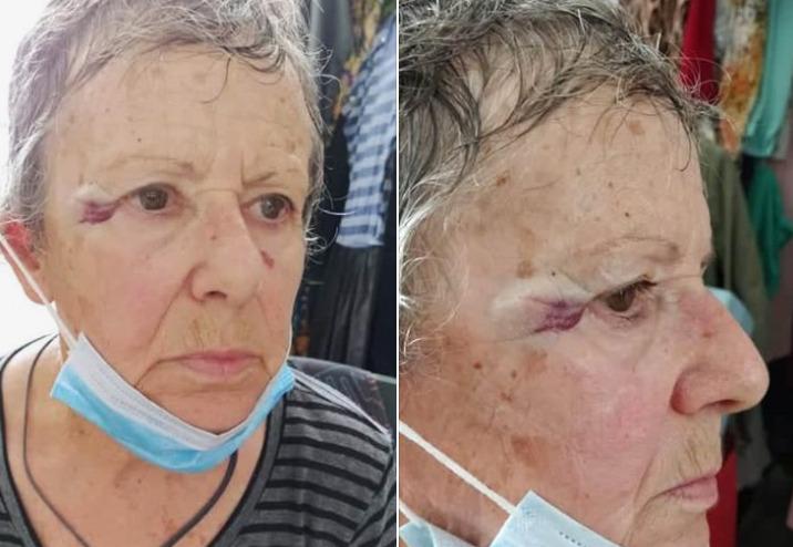 Καταγγελία: Ιερέας χτύπησε ηλικιωμένη σε προαύλιο εκκλησίας επειδή τάιζε γατάκια