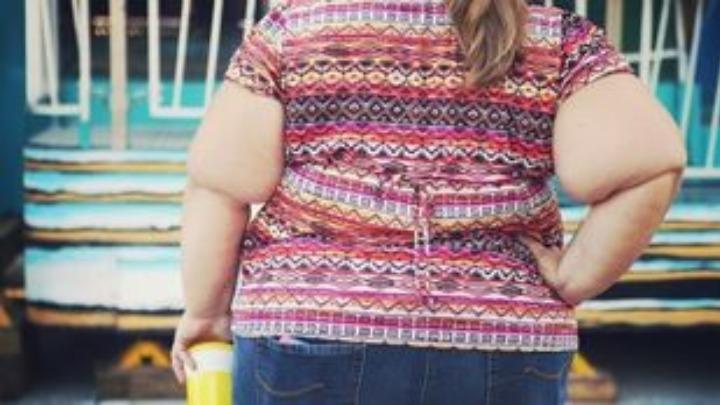Η παχυσαρκία αυξάνει τον κίνδυνο να νοσήσει κάποιος βαρύτερα από κοροναϊό