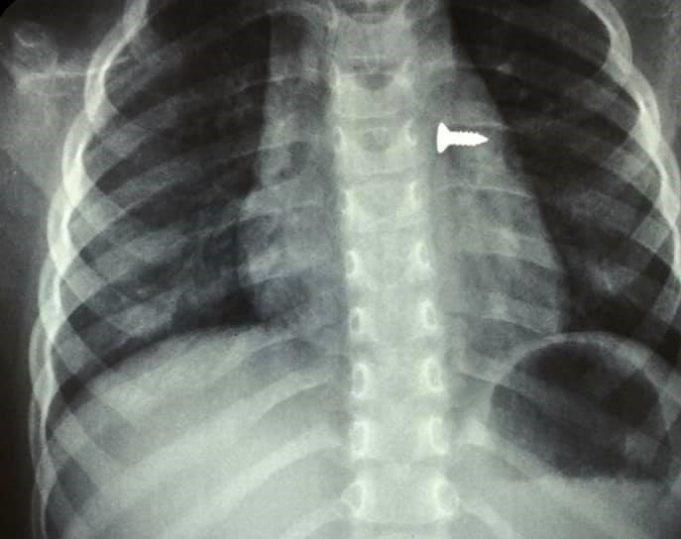 Αφαίρεσαν βίδα από τον αριστερό πνεύμονα τρίχρονης (εικόνες)