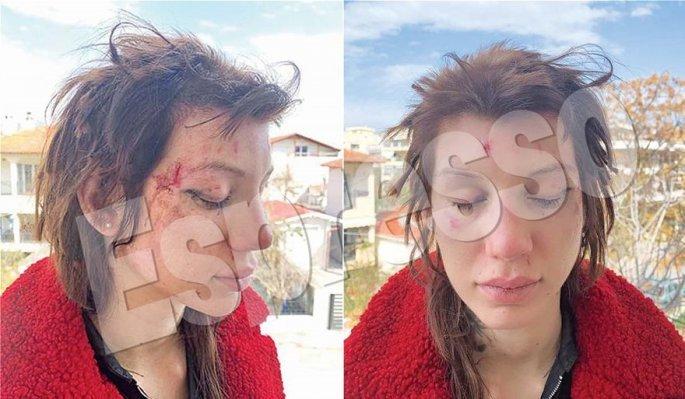 Μαρία Αλεξάνδρου: Εξι γυναίκες με απήγαγαν, με χτύπησαν βάναυσα και με κούρεψαν