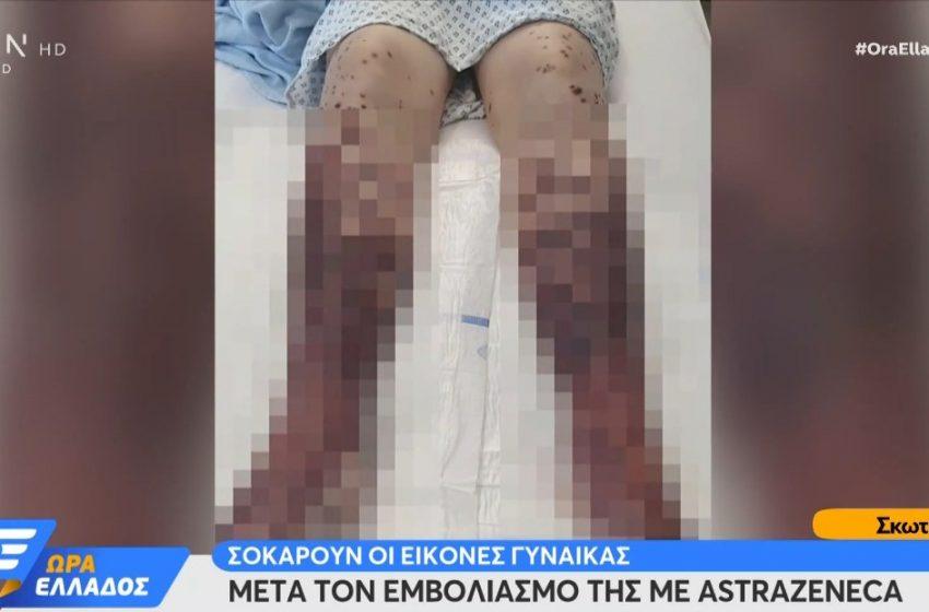 AstraZeneca: Σάλος στην Σκωτία από τις εικόνες 34χρονης μετά τον εμβολιασμό της (vid)