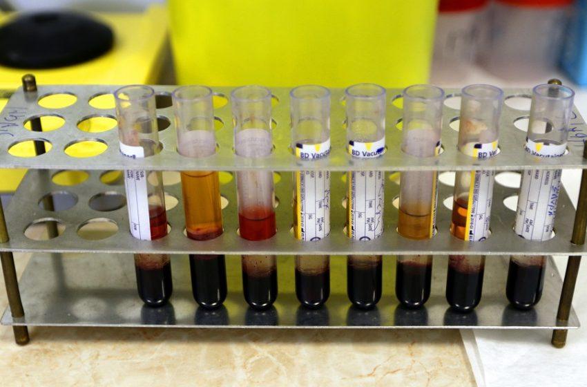 Έρευνα: Μεγαλύτερος ο κίνδυνος σοβαρής Covid-19 για άνδρες με χαμηλή τεστοστερόνη