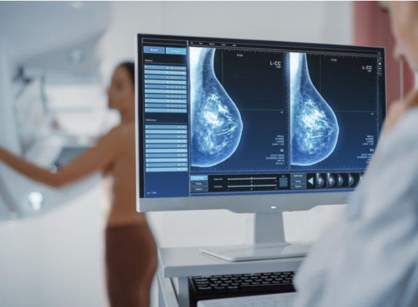 Οδηγία για απεικόνιση μαστού μετά τη 2η δόση εμβολίου mRNA