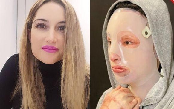 Επίθεση με βιτριόλι: Η Ιωάννα  σοκάρει με τις φωτογραφίες που ανέβασε στο Instagram [σκληρές εικόνες]