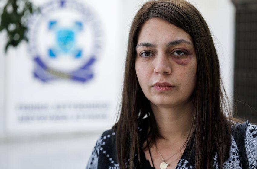 Στη ΓΑΔΑ η βουλευτής του ΜέΡΑ 25, Μαρία Απατζίδη – Ζήτησε εξηγήσεις για την επίθεση από τα ΜΑΤ